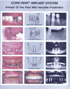 Core-Vent Implant             System 1984