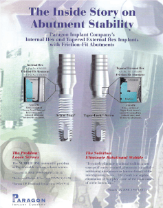 The Inside Story of Abutments Stability Brochure