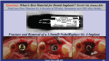 dr.niznick controversal questions in implant dentistryimplant factures